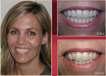 Blonde woman showing her before and after smile