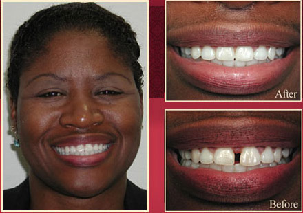 Actual patient before and after gap smile