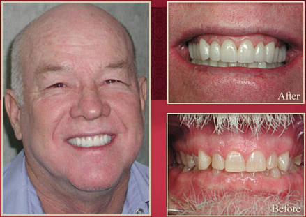 Male before and after dental procedure