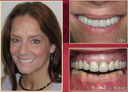 Female patient before and after smile