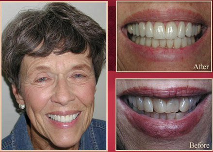 Elderly female patient before and after dental procedure
