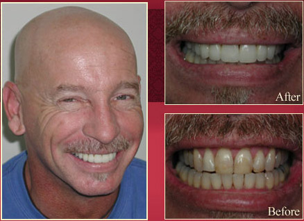 Patient showing his before and after procedure