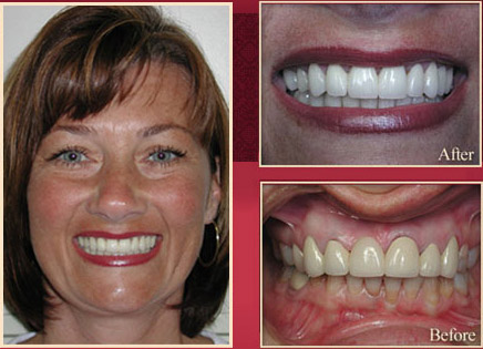 Red haired female patient before and after smile