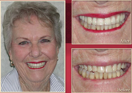 Elderly woman before and after smile