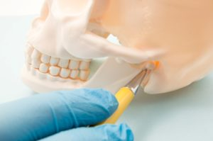dentist pointing to model skull for TMJ in Los Alamitos.